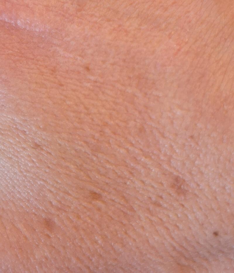 Alternde Haut